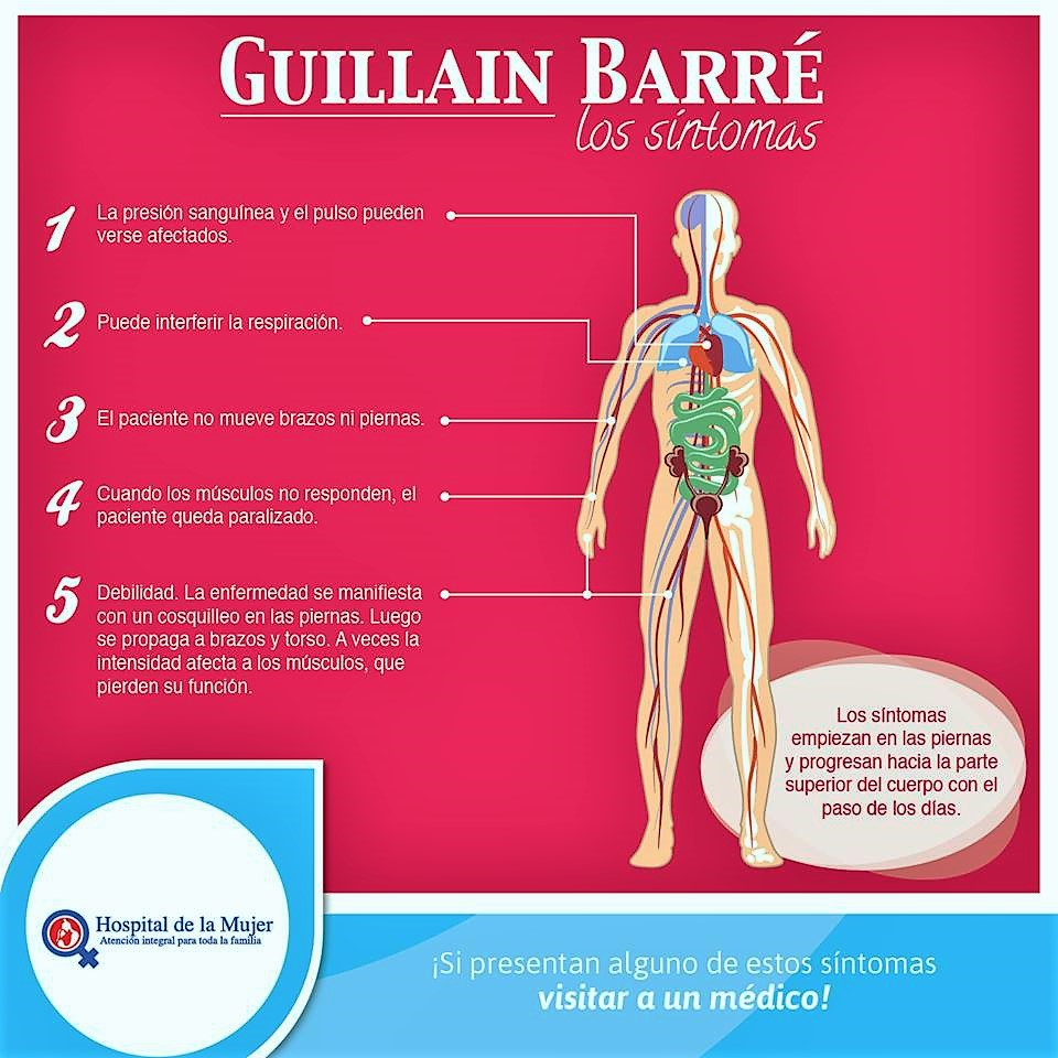 Sindrome de guillain barre pdf 2016
